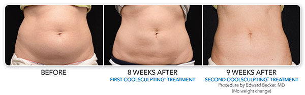 coolsculpting-ba-becker-3set-cmyk-hires