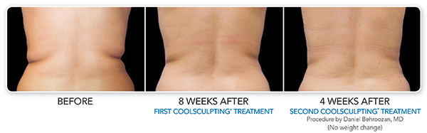 coolsculpting-ba-behroozan-3set-cmyk-hires-2
