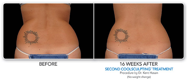 coolsculpting-ba-hasan-2set-cmyk-hires