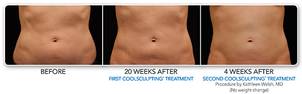 coolsculpting-ba-welsh-2set-20weeks-cmyk-hires