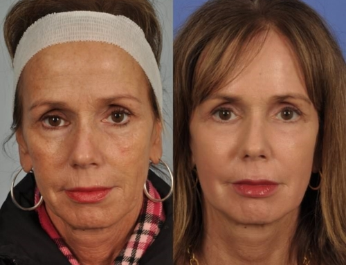 "The 3D Rx Procedure – Addressing the 3 ""D's"" of Aging = 1 Incredible Result"