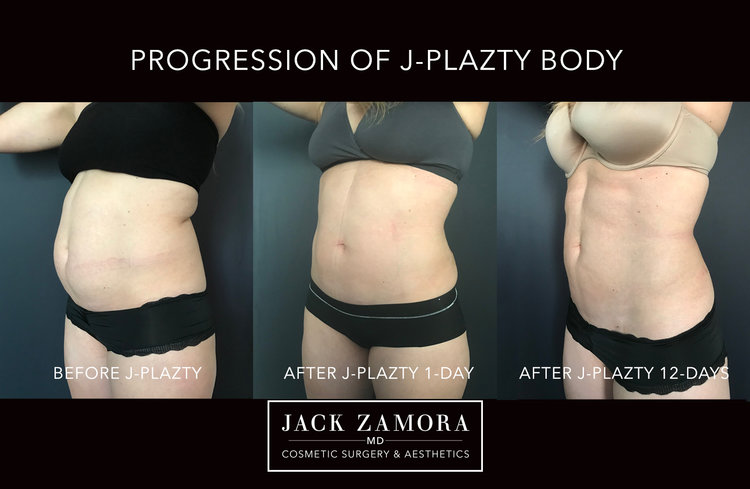 J-Plazty_Body_by_Dr._Jack_Zamora