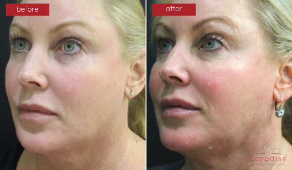 Micronized Fat Transfer - Lips