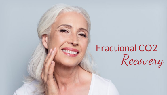 Fractional CO2 Recovery